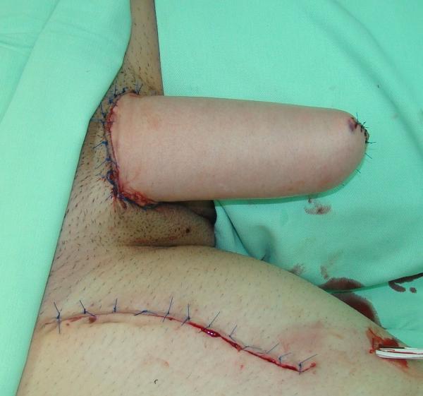 Urethral lengthening transsexual