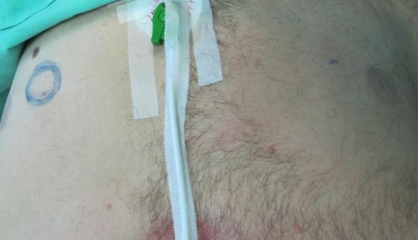 Phalloplasty, Neophallus, Female To Male Surgery, Transgender-4041